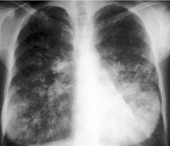 X-ray of chest with cystic fibrosis (CF).