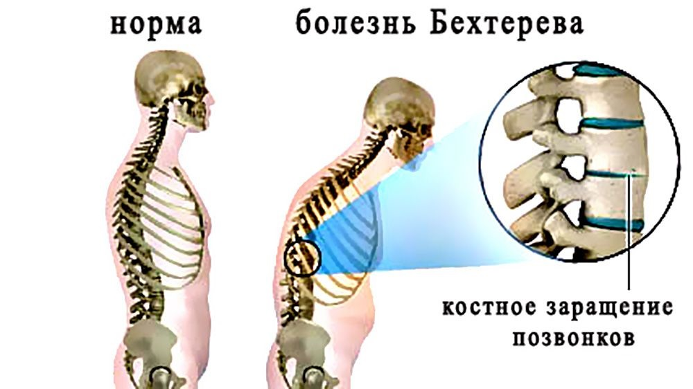 Крем здоров от суставов купить в беларуси