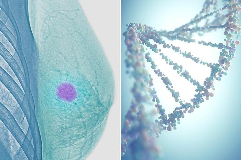 Наследственный рак молочной железы